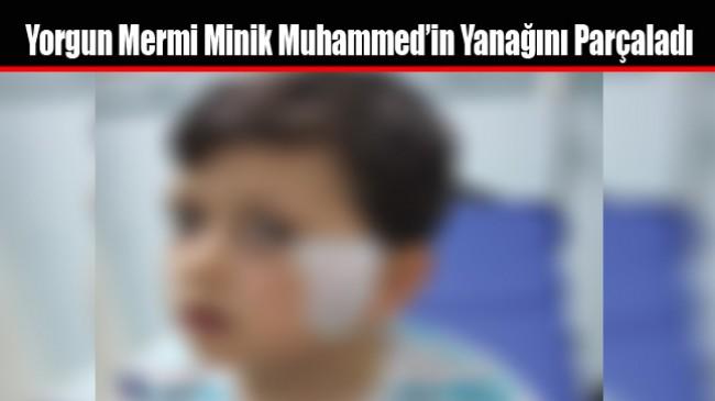 Yorgun Mermi Minik Muhammed'in Yanağını Parçaladı